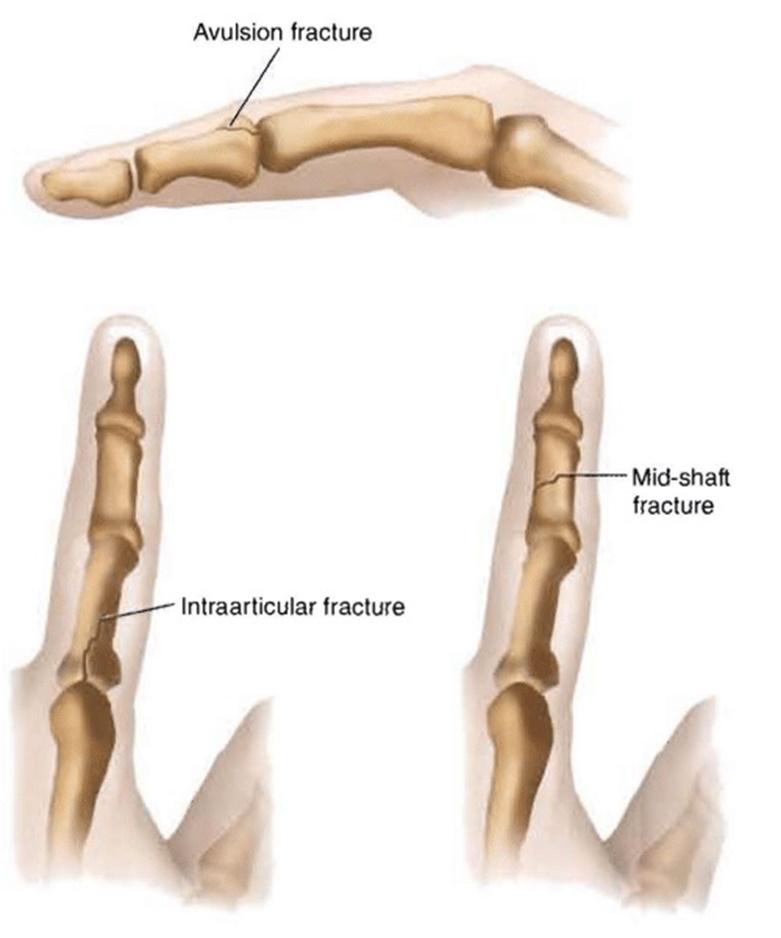 First aid for broken finger