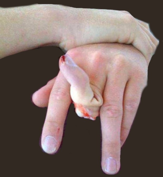 First aid for a finger fracture