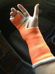 Fractured finger first aid
